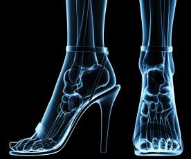 Картинка разное кости +рентген каблуки