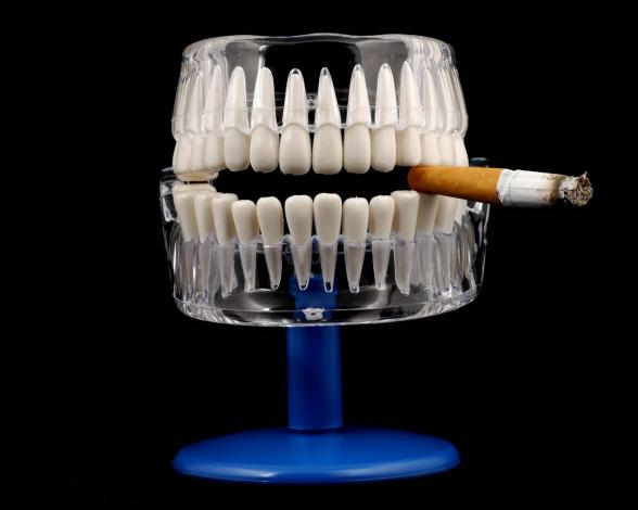 Курение после имплантации зубов форум
