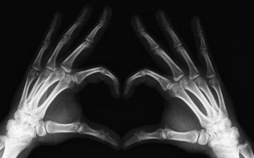 Картинка разное кости рентген руки пальцы конечности